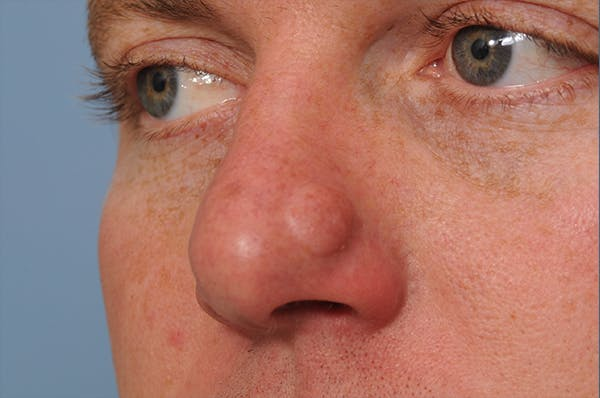 Blemish & Mole Removal Gallery - Patient 8647153 - Image 3