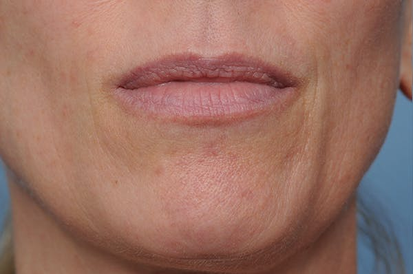 Blemish & Mole Removal Gallery - Patient 8647154 - Image 2