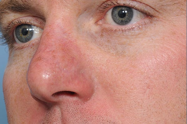 Blemish & Mole Removal Gallery - Patient 8647153 - Image 4