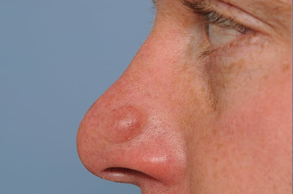 Blemish & Mole Removal Gallery - Patient 8647153 - Image 5