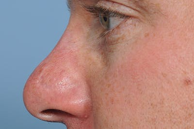 Blemish & Mole Removal Gallery - Patient 8647153 - Image 6