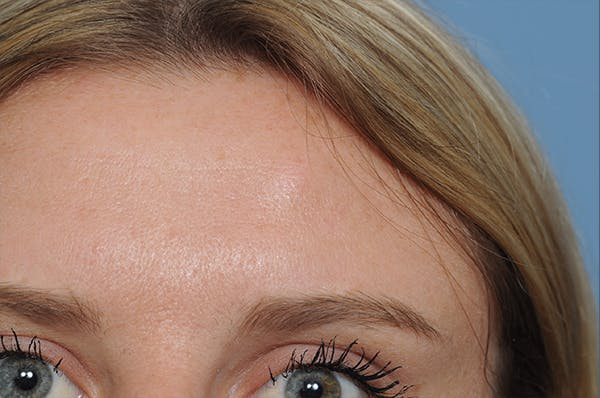 Blemish & Mole Removal Gallery - Patient 8647155 - Image 3