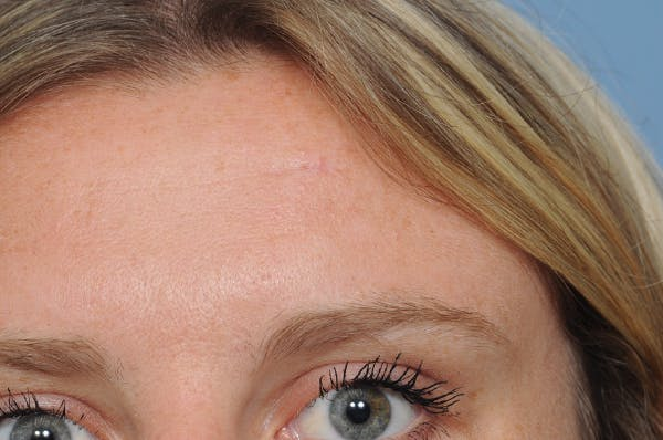 Blemish & Mole Removal Gallery - Patient 8647155 - Image 4