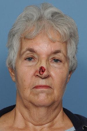 Facial Skin Cancer Reconstruction