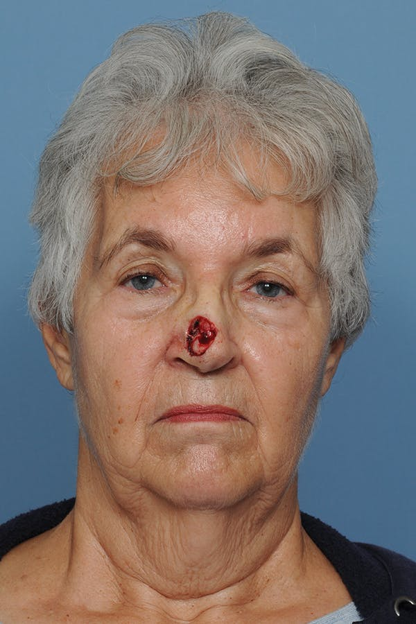 Facial Skin Cancer Reconstruction Gallery - Patient 8647177 - Image 1