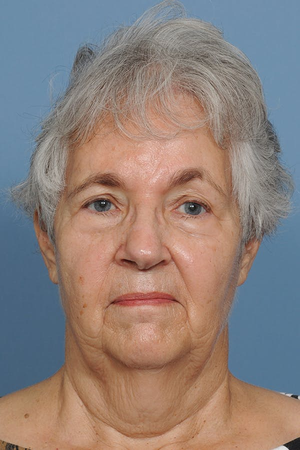 Facial Skin Cancer Reconstruction Gallery - Patient 8647177 - Image 2