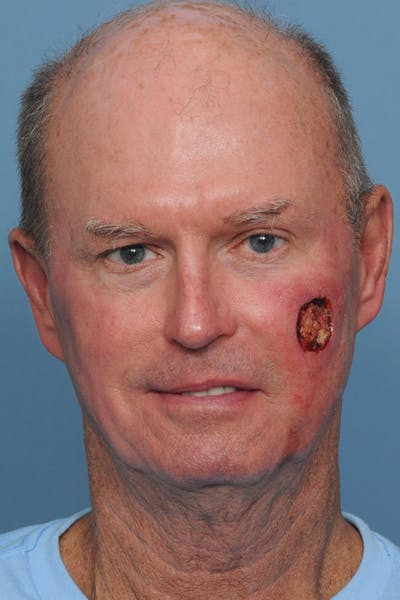 Facial Skin Cancer Reconstruction Gallery - Patient 8647178 - Image 1