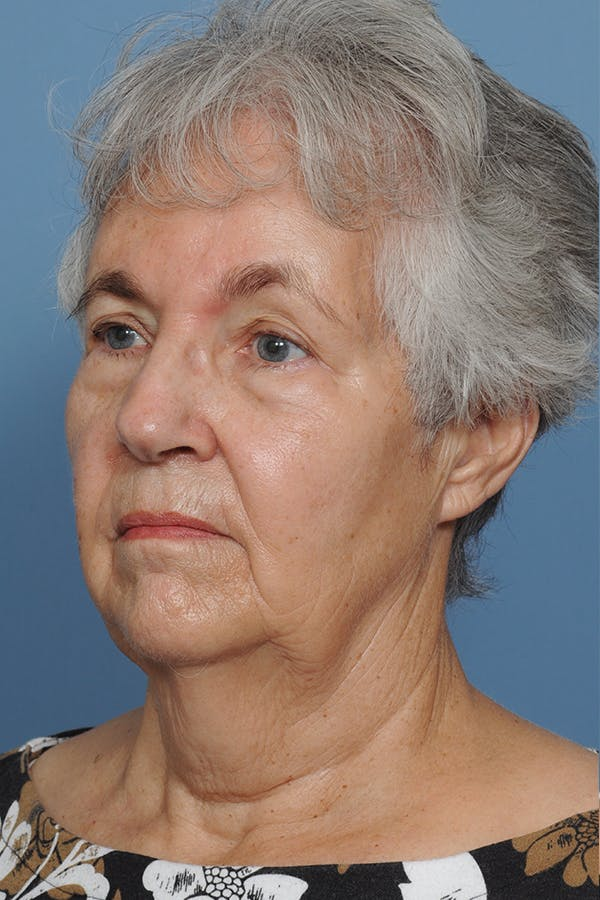 Facial Skin Cancer Reconstruction Gallery - Patient 8647177 - Image 6