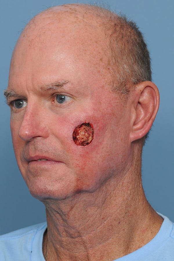 Facial Skin Cancer Reconstruction Gallery - Patient 8647178 - Image 5
