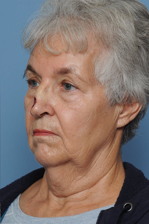 Facial Skin Cancer Reconstruction Gallery - Patient 8647177 - Image 5