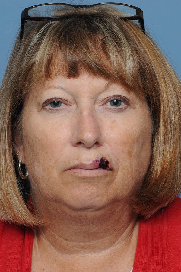 Facial Skin Cancer Reconstruction Gallery - Patient 8647179 - Image 1