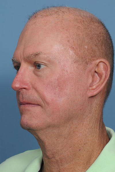 Facial Skin Cancer Reconstruction Gallery - Patient 8647178 - Image 6