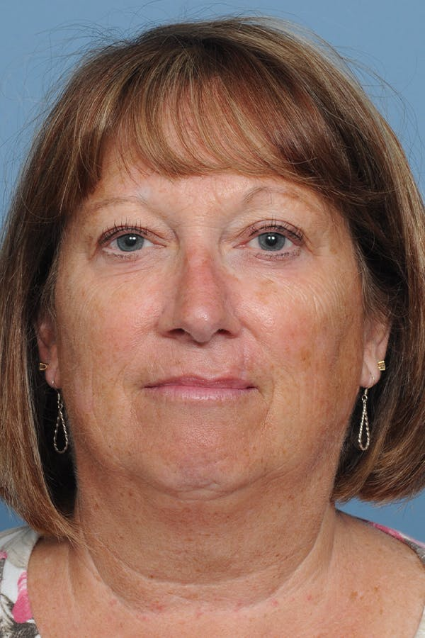 Facial Skin Cancer Reconstruction Gallery - Patient 8647179 - Image 2