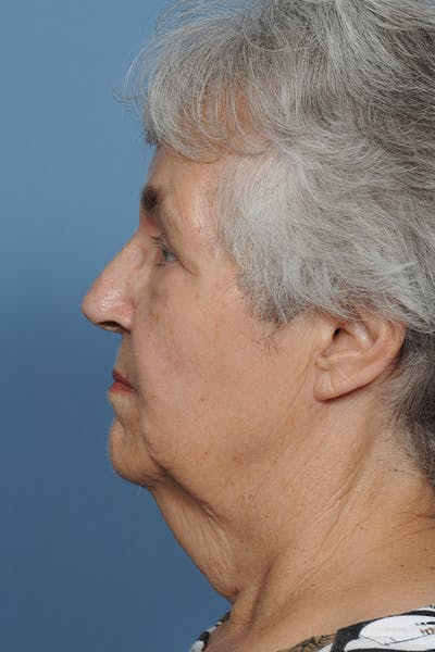 Facial Skin Cancer Reconstruction Gallery - Patient 8647177 - Image 4