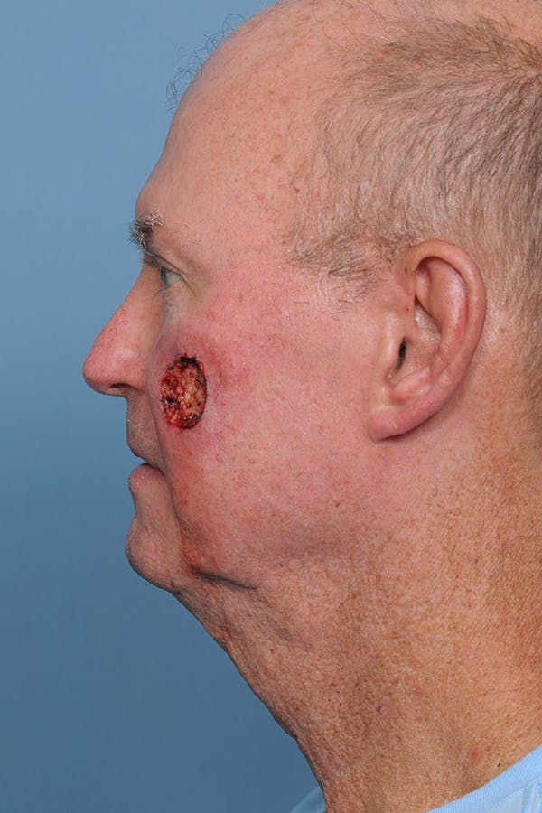 Facial Skin Cancer Reconstruction Gallery - Patient 8647178 - Image 3