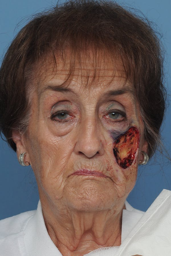 Facial Skin Cancer Reconstruction Gallery - Patient 8647180 - Image 1