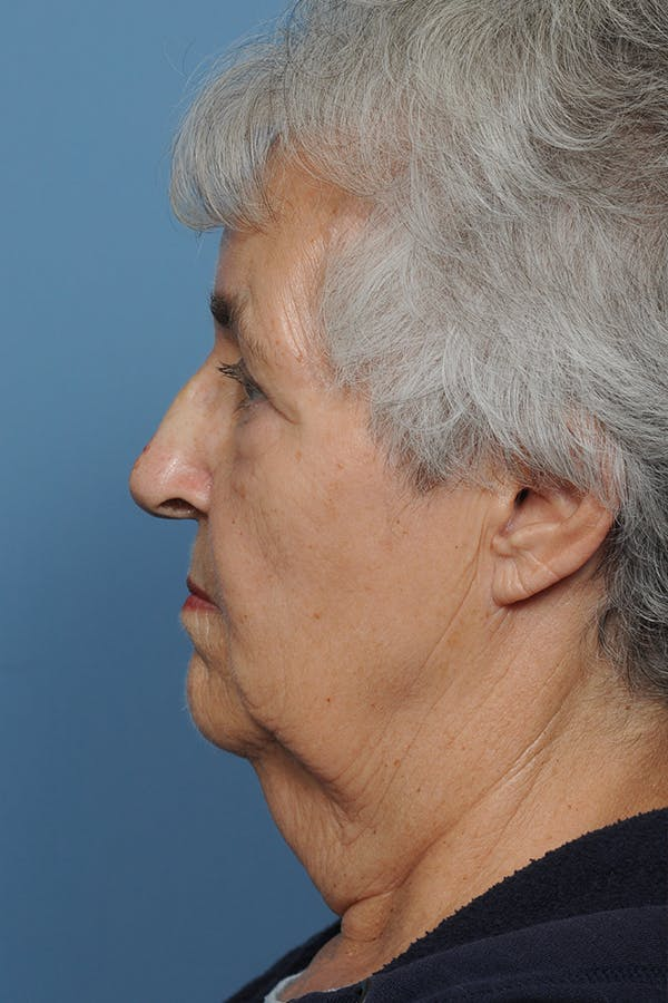 Facial Skin Cancer Reconstruction Gallery - Patient 8647177 - Image 3