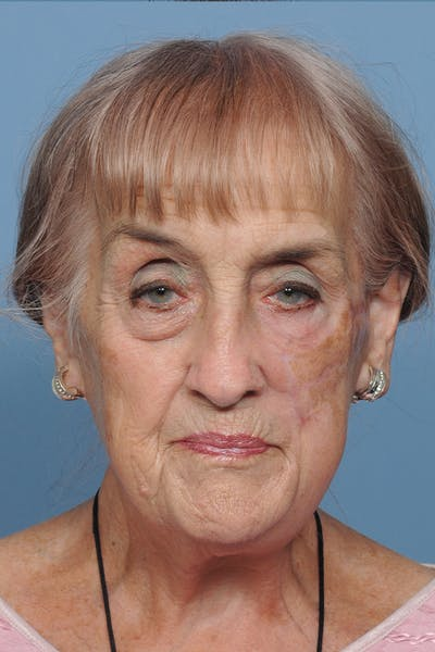 Facial Skin Cancer Reconstruction Gallery - Patient 8647180 - Image 2