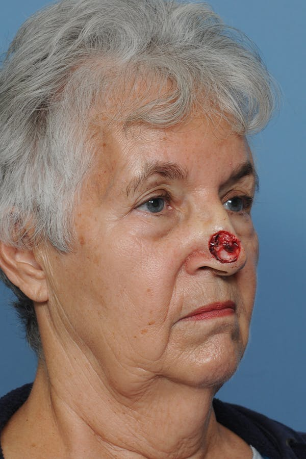 Facial Skin Cancer Reconstruction Gallery - Patient 8647177 - Image 9