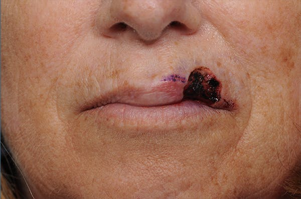 Facial Skin Cancer Reconstruction Gallery - Patient 8647179 - Image 3