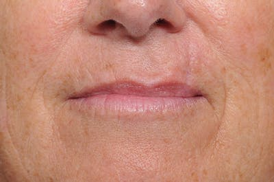 Facial Skin Cancer Reconstruction Gallery - Patient 8647179 - Image 4