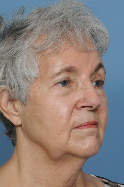 Facial Skin Cancer Reconstruction Gallery - Patient 8647177 - Image 10