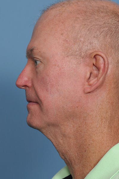 Facial Skin Cancer Reconstruction Gallery - Patient 8647178 - Image 4