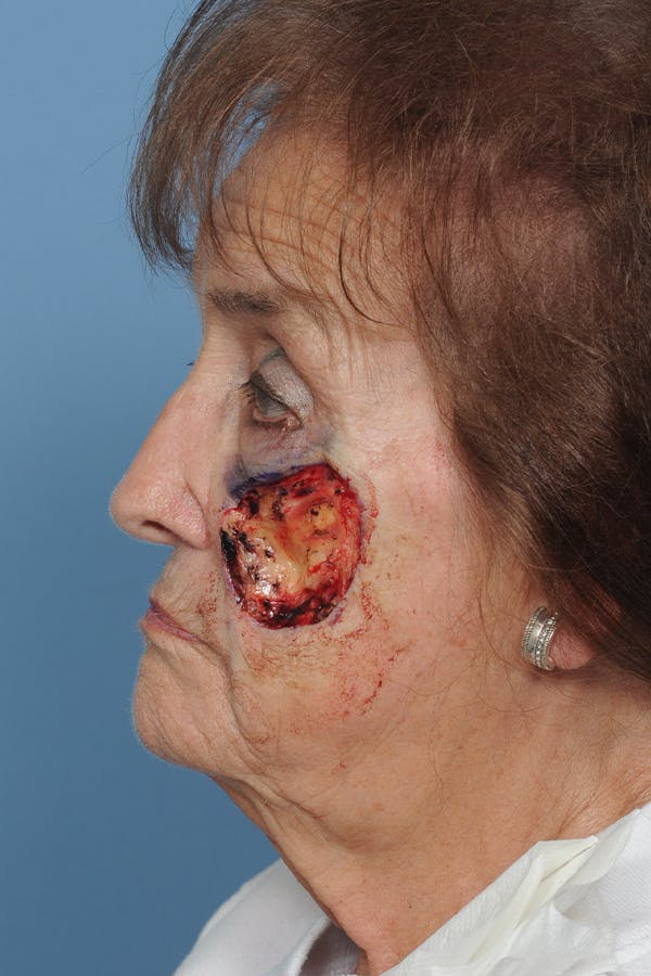 Facial Skin Cancer Reconstruction Gallery - Patient 8647180 - Image 3