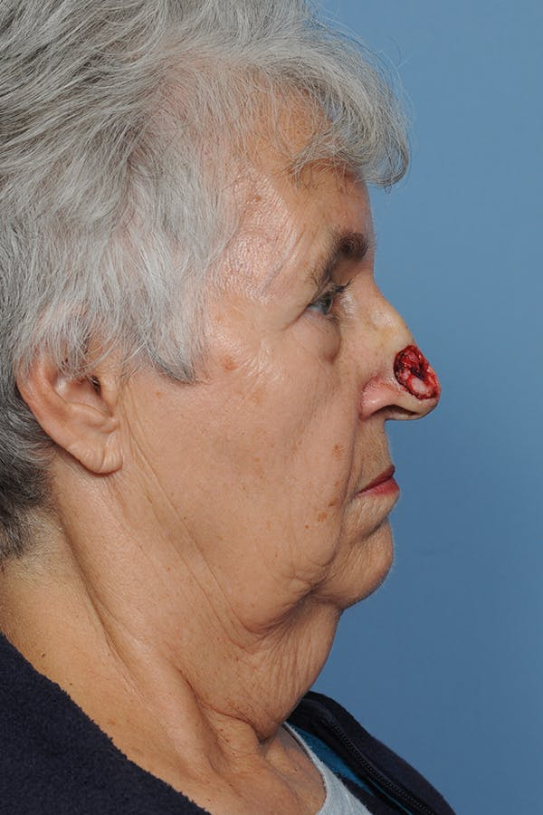 Facial Skin Cancer Reconstruction Gallery - Patient 8647177 - Image 7
