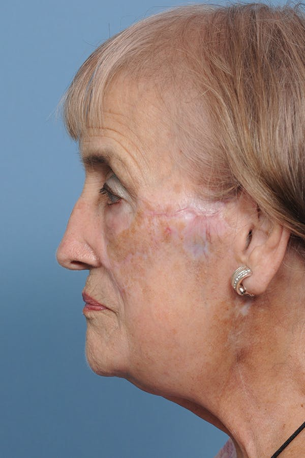 Facial Skin Cancer Reconstruction Gallery - Patient 8647180 - Image 4