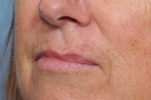 Facial Skin Cancer Reconstruction Gallery - Patient 8647179 - Image 8