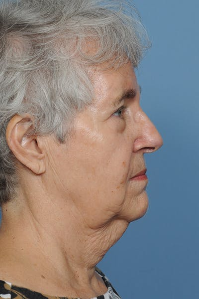 Facial Skin Cancer Reconstruction Gallery - Patient 8647177 - Image 8