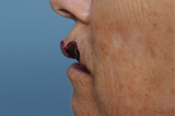 Facial Skin Cancer Reconstruction Gallery - Patient 8647179 - Image 5