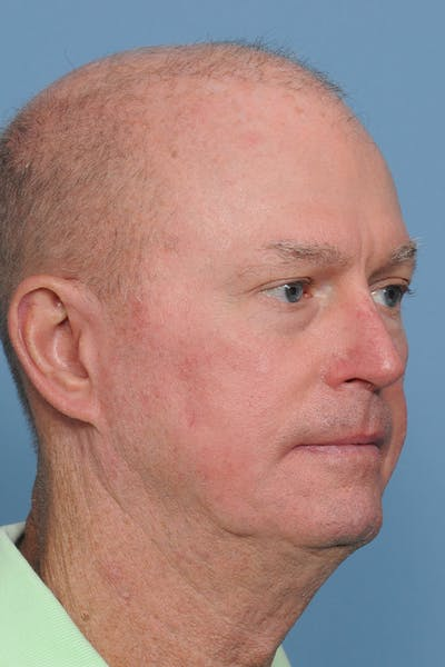 Facial Skin Cancer Reconstruction Gallery - Patient 8647178 - Image 10