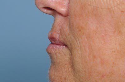 Facial Skin Cancer Reconstruction Gallery - Patient 8647179 - Image 6