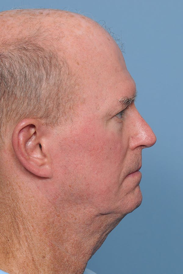Facial Skin Cancer Reconstruction Gallery - Patient 8647178 - Image 7