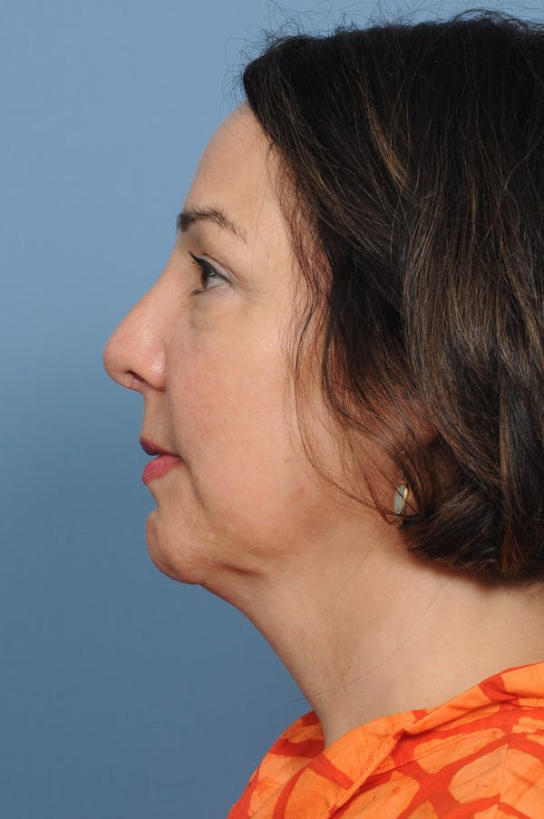 Harmonizing Chin Implant Gallery - Patient 12268216 - Image 8