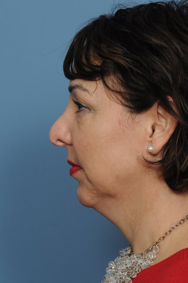 Harmonizing Chin Implant Gallery - Patient 12268216 - Image 7