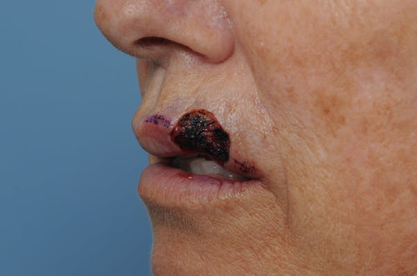 Facial Skin Cancer Reconstruction Gallery - Patient 8647179 - Image 7