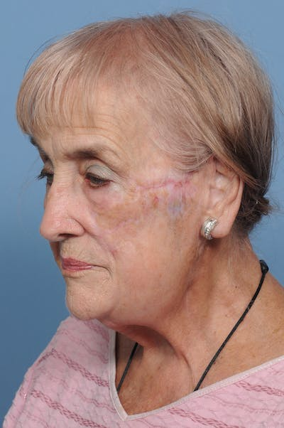 Facial Skin Cancer Reconstruction Gallery - Patient 8647180 - Image 6