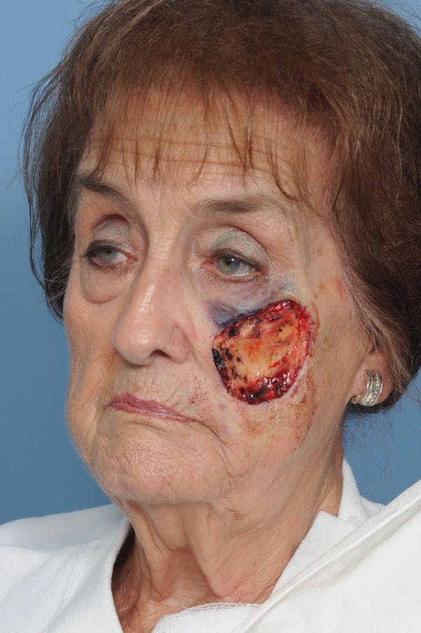 Facial Skin Cancer Reconstruction Gallery - Patient 8647180 - Image 5
