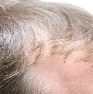 Hair restoraion
