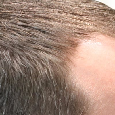 Hair Restoration with Exosomes Gallery - Patient 21033294 - Image 2