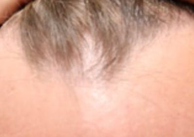 Hair Restoration with Exosomes Gallery - Patient 21139553 - Image 1