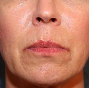 Exosome Facial