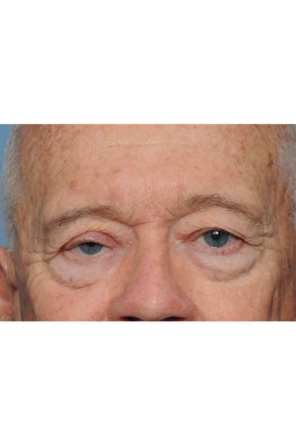 Eyelid Lift Gallery - Patient 8376646 - Image 1