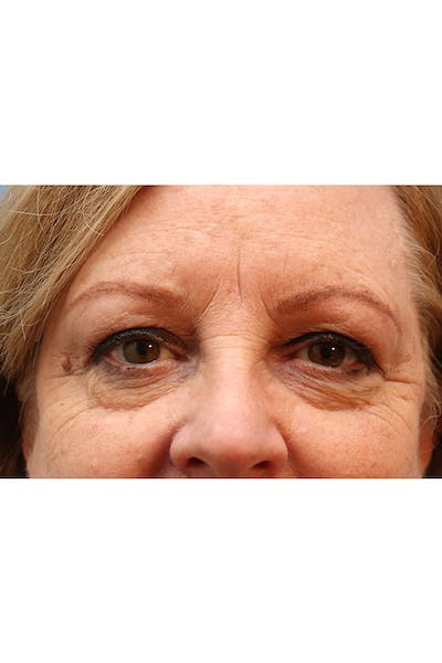 Eyelid Lift Gallery - Patient 29785295 - Image 1