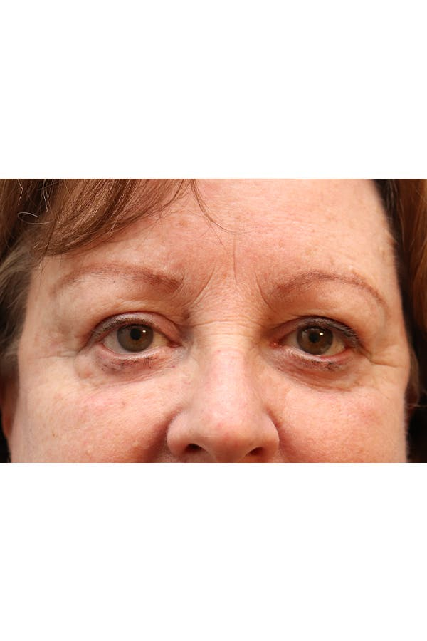 Eyelid Lift Gallery - Patient 29785295 - Image 2