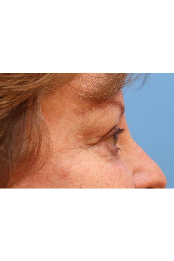 Eyelid Lift Gallery - Patient 29785295 - Image 6
