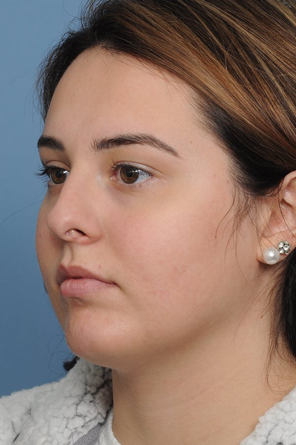 Rhinoplasty Gallery - Patient 8376727 - Image 3